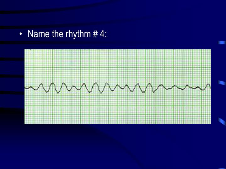 Name the rhythm # 4: