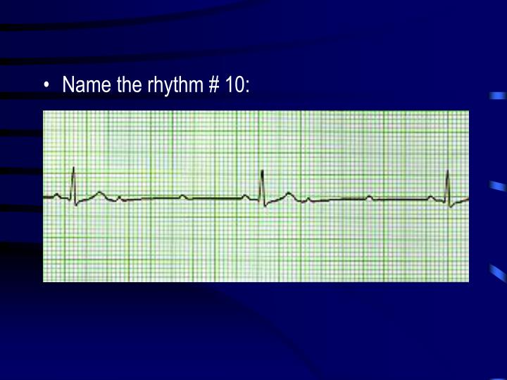 Name the rhythm # 10: