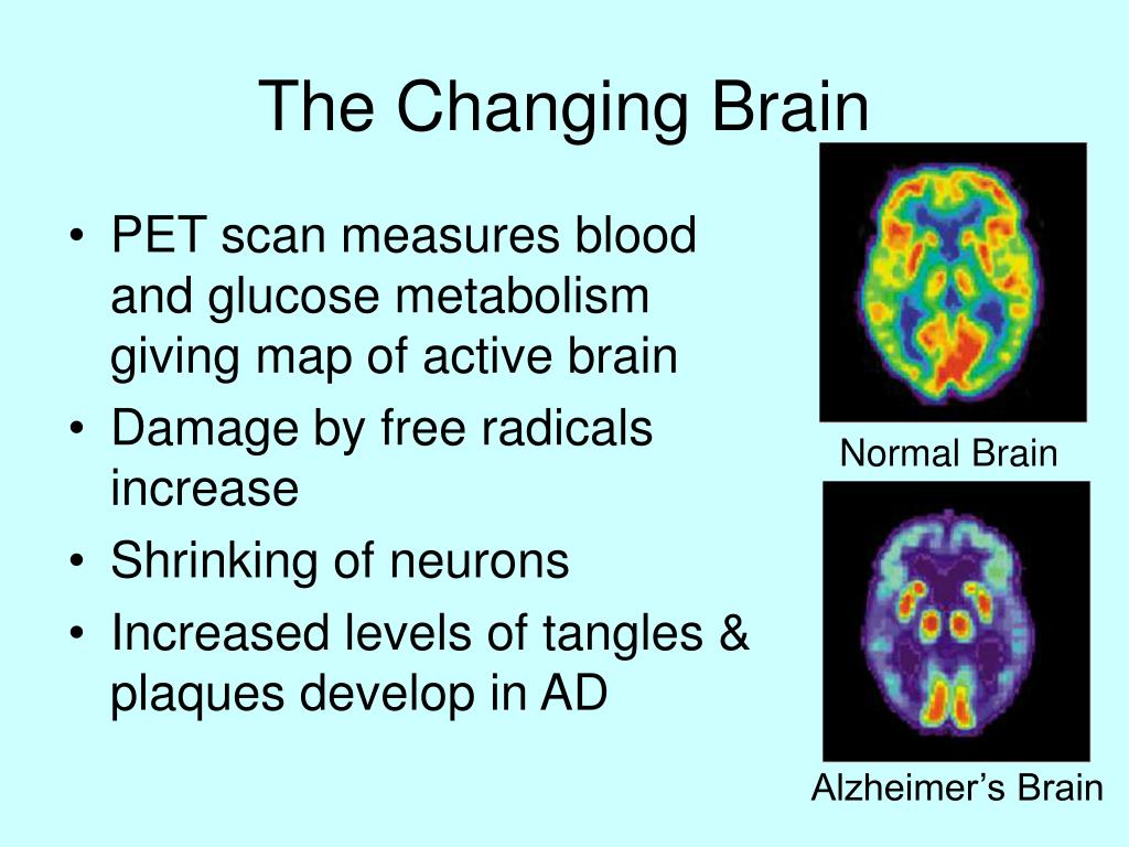 The Changing Brain