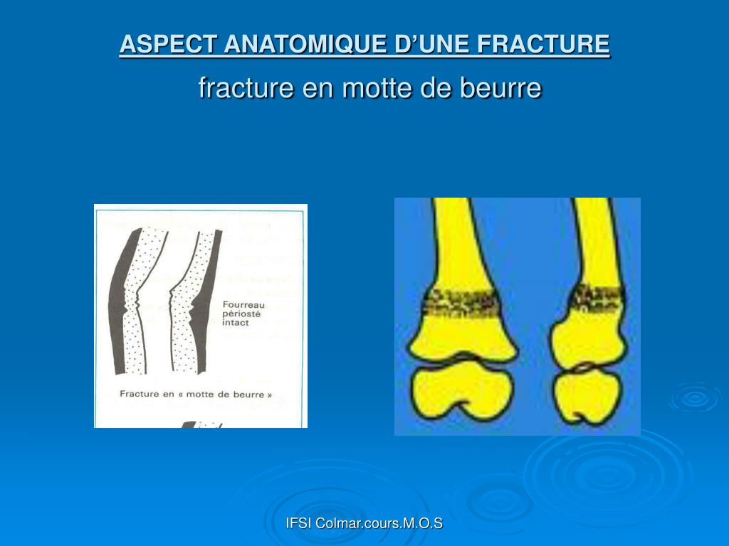 Ifsi Aulnay Sous Bois - PPT LES FRACTURES PowerPoint Presentation ID 299150