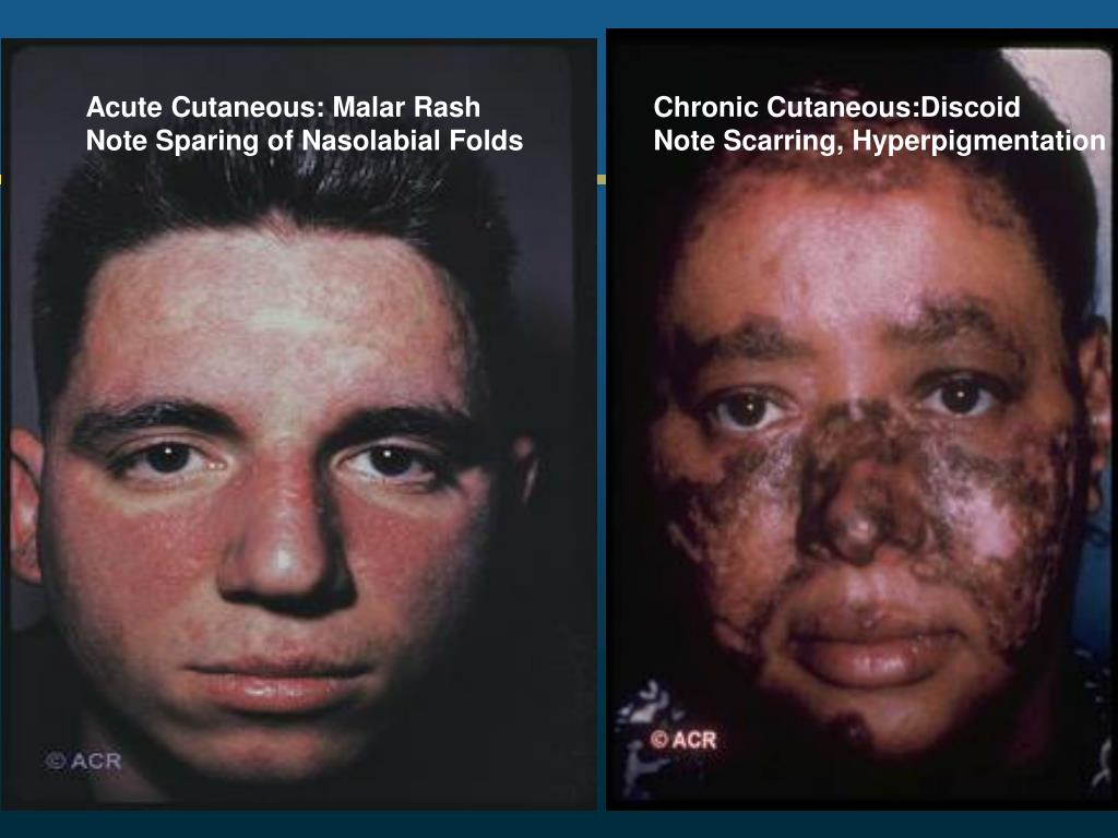 Acute Cutaneous: Malar Rash
