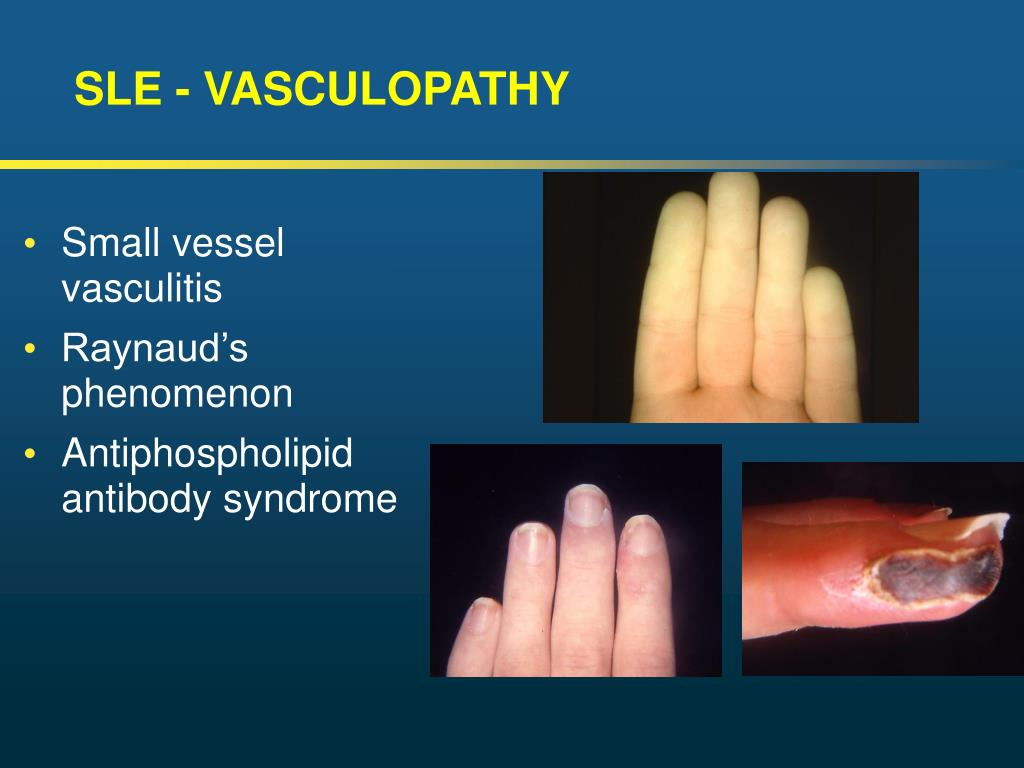 SLE - VASCULOPATHY