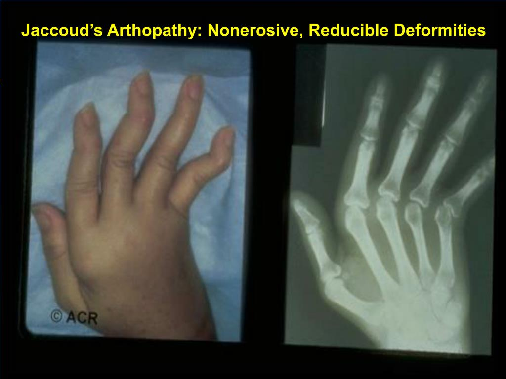 Jaccoud's Arthopathy: Nonerosive, Reducible Deformities