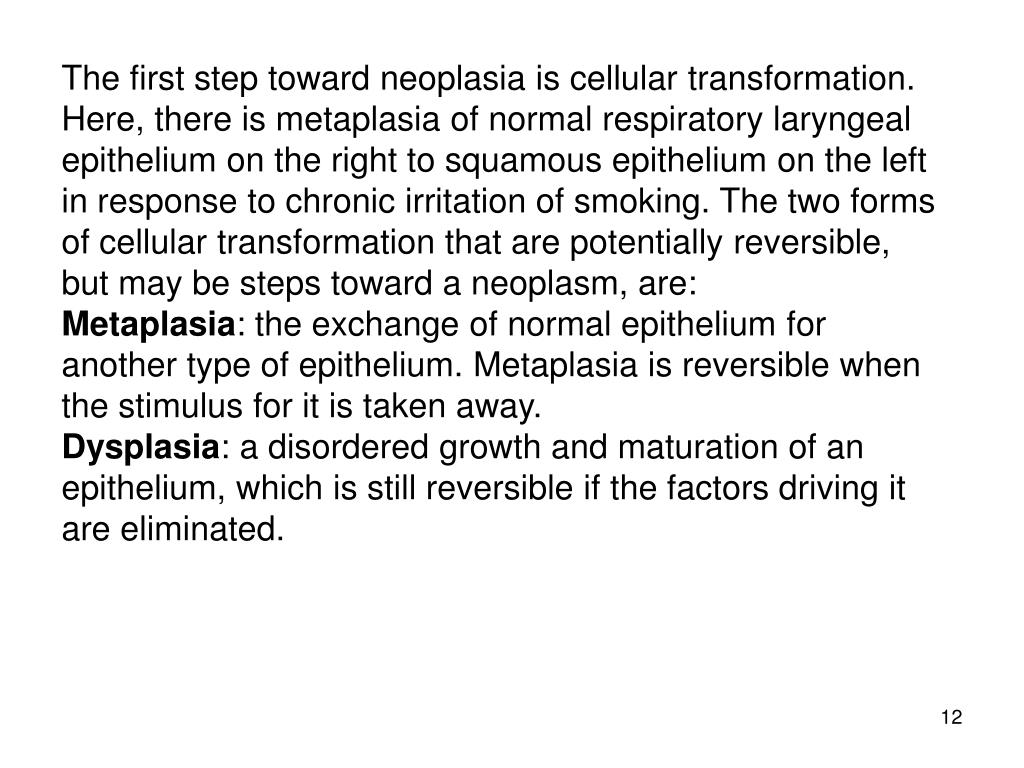 The first step toward neoplasia is cellular transformation. Here, there is metaplasia of normal respiratory laryngeal epithelium on the right to squamous epithelium on the left in response to chronic irritation of smoking. The two forms of cellular transformation that are potentially reversible, but may be steps toward a neoplasm, are: