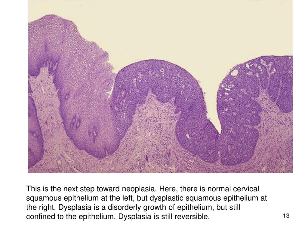 This is the next step toward neoplasia. Here, there is normal cervical squamous epithelium at the left, but dysplastic squamous epithelium at the right. Dysplasia is a disorderly growth of epithelium, but still confined to the epithelium. Dysplasia is still reversible.