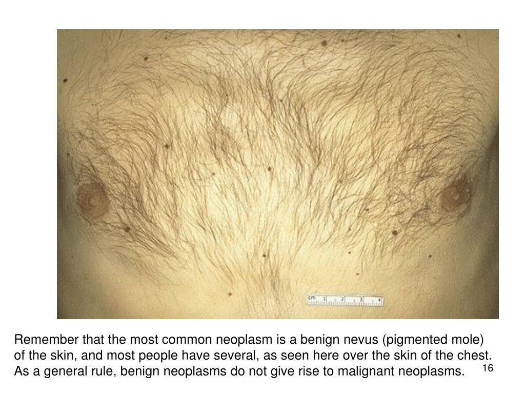 Remember that the most common neoplasm is a benign nevus (pigmented mole) of the skin, and most people have several, as seen here over the skin of the chest. As a general rule, benign neoplasms do not give rise to malignant neoplasms.