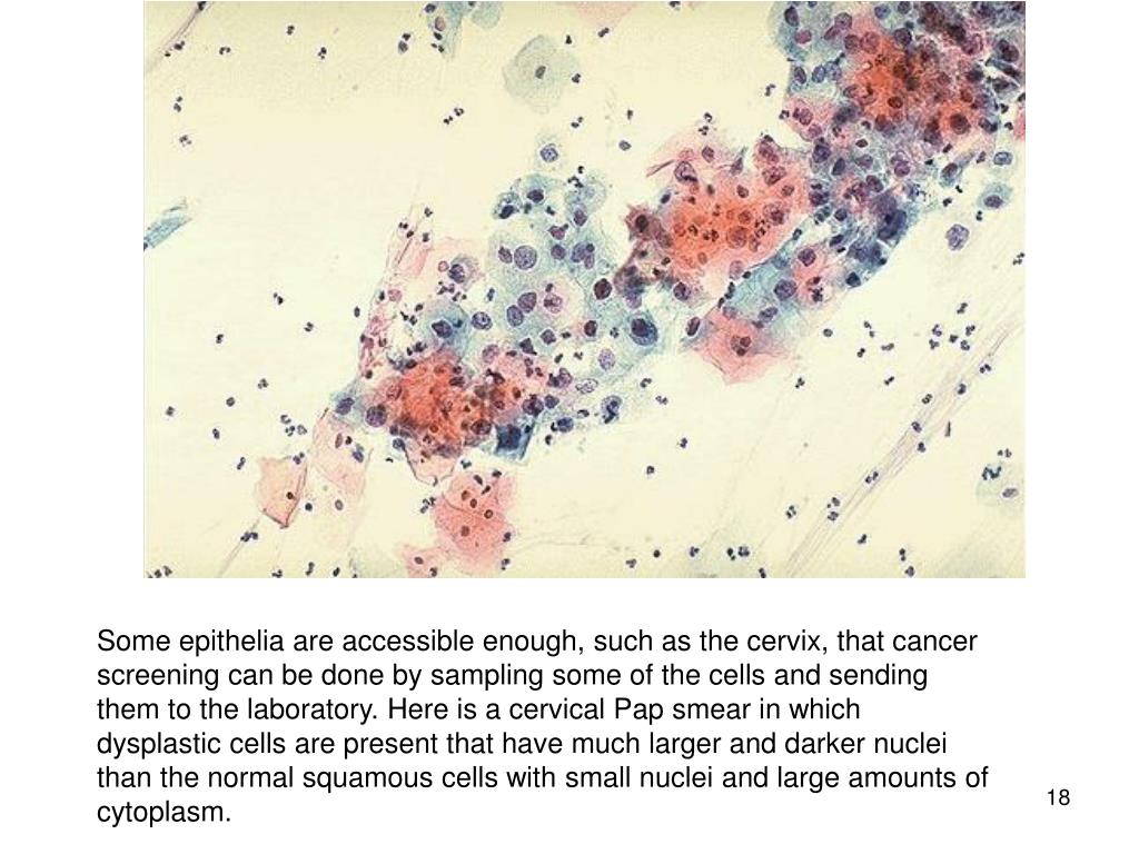 Some epithelia are accessible enough, such as the cervix, that cancer screening can be done by sampling some of the cells and sending them to the laboratory. Here is a cervical Pap smear in which dysplastic cells are present that have much larger and darker nuclei than the normal squamous cells with small nuclei and large amounts of cytoplasm.