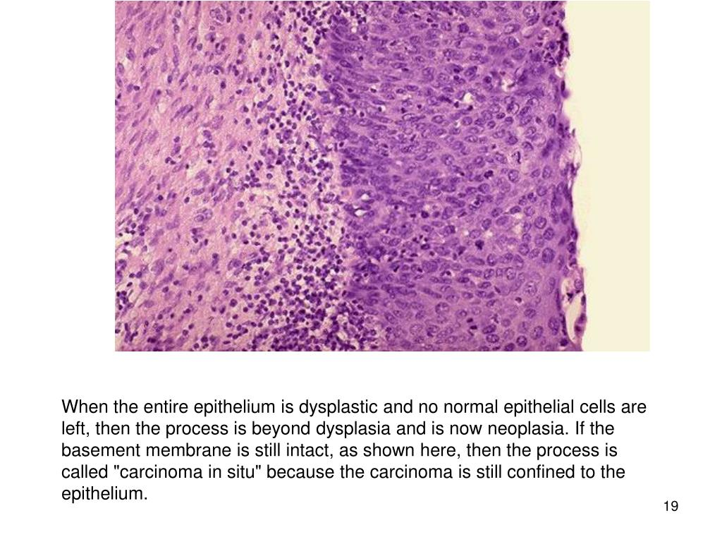 "When the entire epithelium is dysplastic and no normal epithelial cells are left, then the process is beyond dysplasia and is now neoplasia. If the basement membrane is still intact, as shown here, then the process is called ""carcinoma in situ"" because the carcinoma is still confined to the epithelium."