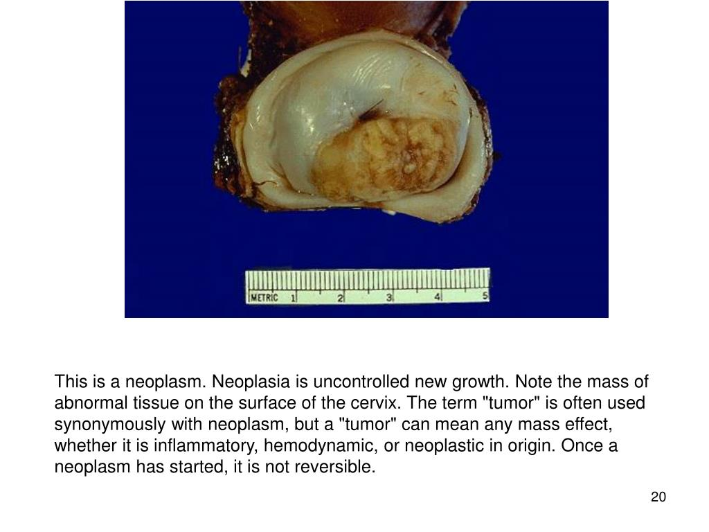 "This is a neoplasm. Neoplasia is uncontrolled new growth. Note the mass of abnormal tissue on the surface of the cervix. The term ""tumor"" is often used synonymously with neoplasm, but a ""tumor"" can mean any mass effect, whether it is inflammatory, hemodynamic, or neoplastic in origin. Once a neoplasm has started, it is not reversible."