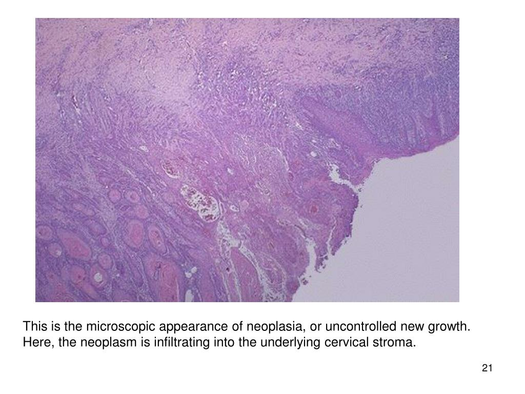 This is the microscopic appearance of neoplasia, or uncontrolled new growth. Here, the neoplasm is infiltrating into the underlying cervical stroma.