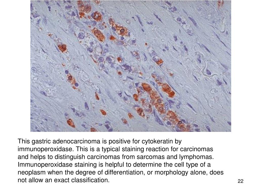 This gastric adenocarcinoma is positive for cytokeratin by immunoperoxidase. This is a typical staining reaction for carcinomas and helps to distinguish carcinomas from sarcomas and lymphomas. Immunoperoxidase staining is helpful to determine the cell type of a neoplasm when the degree of differentiation, or morphology alone, does not allow an exact classification.