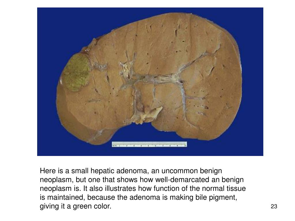 Here is a small hepatic adenoma, an uncommon benign neoplasm, but one that shows how well-demarcated an benign neoplasm is. It also illustrates how function of the normal tissue is maintained, because the adenoma is making bile pigment, giving it a green color.