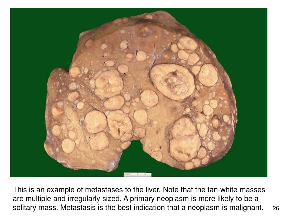 This is an example of metastases to the liver. Note that the tan-white masses are multiple and irregularly sized. A primary neoplasm is more likely to be a solitary mass. Metastasis is the best indication that a neoplasm is malignant.