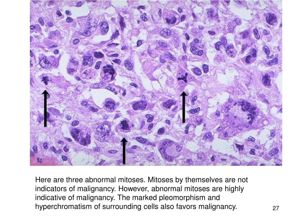 Here are three abnormal mitoses. Mitoses by themselves are not indicators of malignancy. However, abnormal mitoses are highly indicative of malignancy. The marked pleomorphism and hyperchromatism of surrounding cells also favors malignancy.