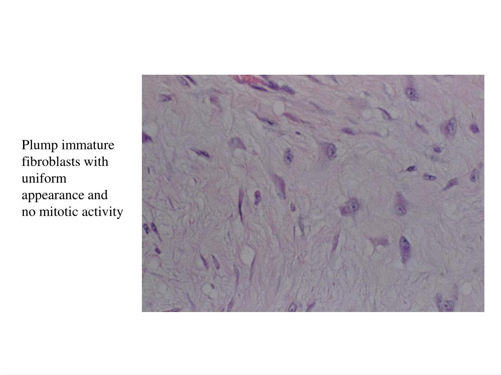 Plump immature fibroblasts with uniform appearance and no mitotic activity