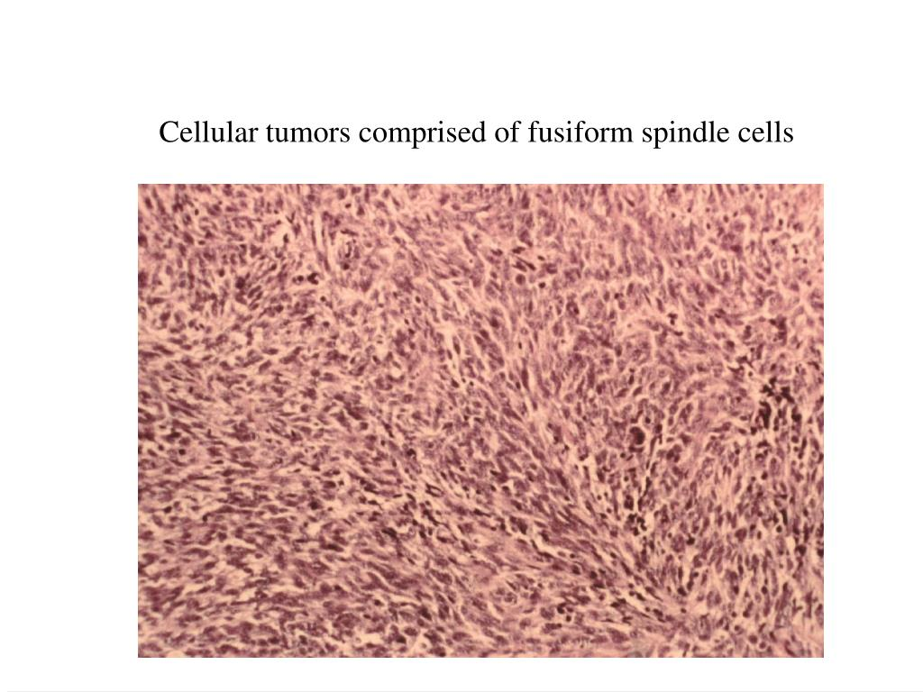 Cellular tumors comprised of fusiform spindle cells