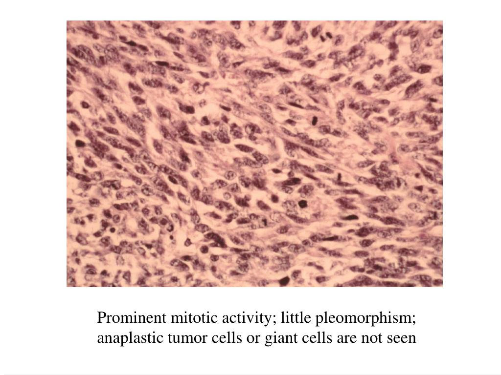 Prominent mitotic activity; little pleomorphism; anaplastic tumor cells or giant cells are not seen