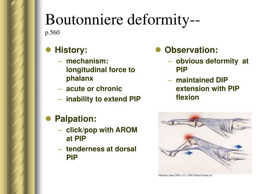 Boutonniere deformity--