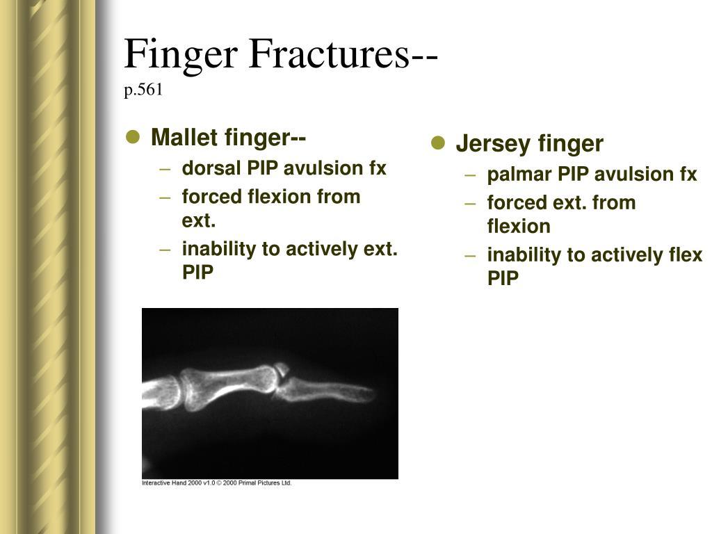 Finger Fractures--