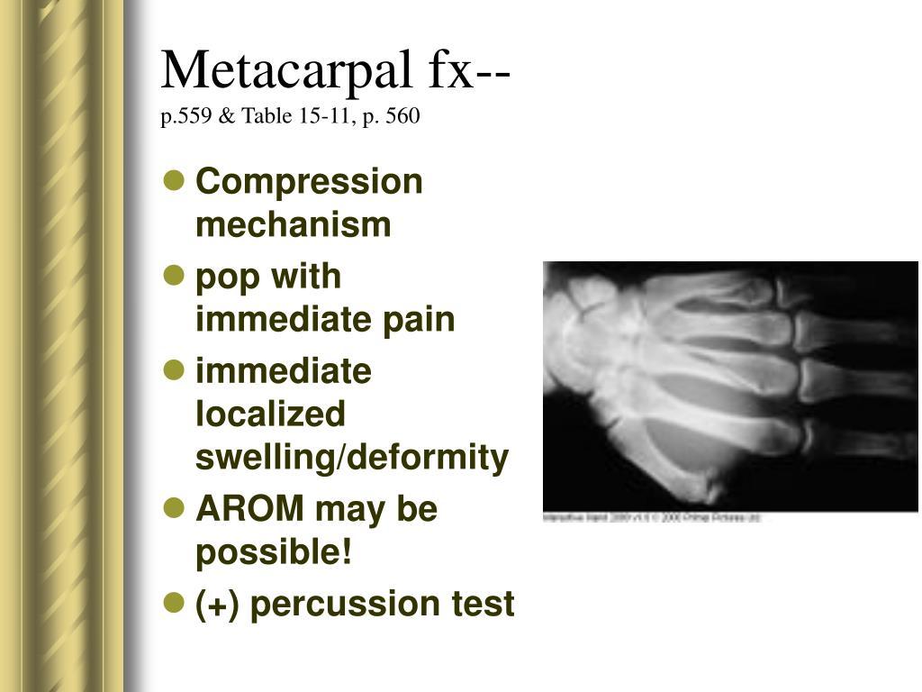 Metacarpal fx--
