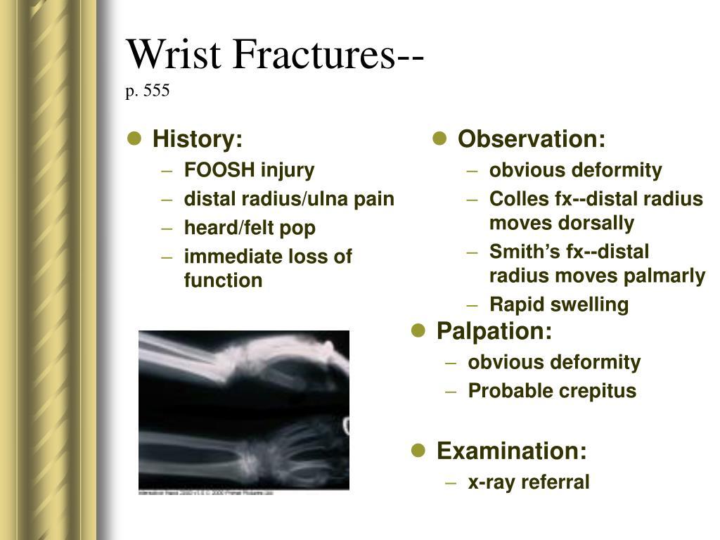 Wrist Fractures--