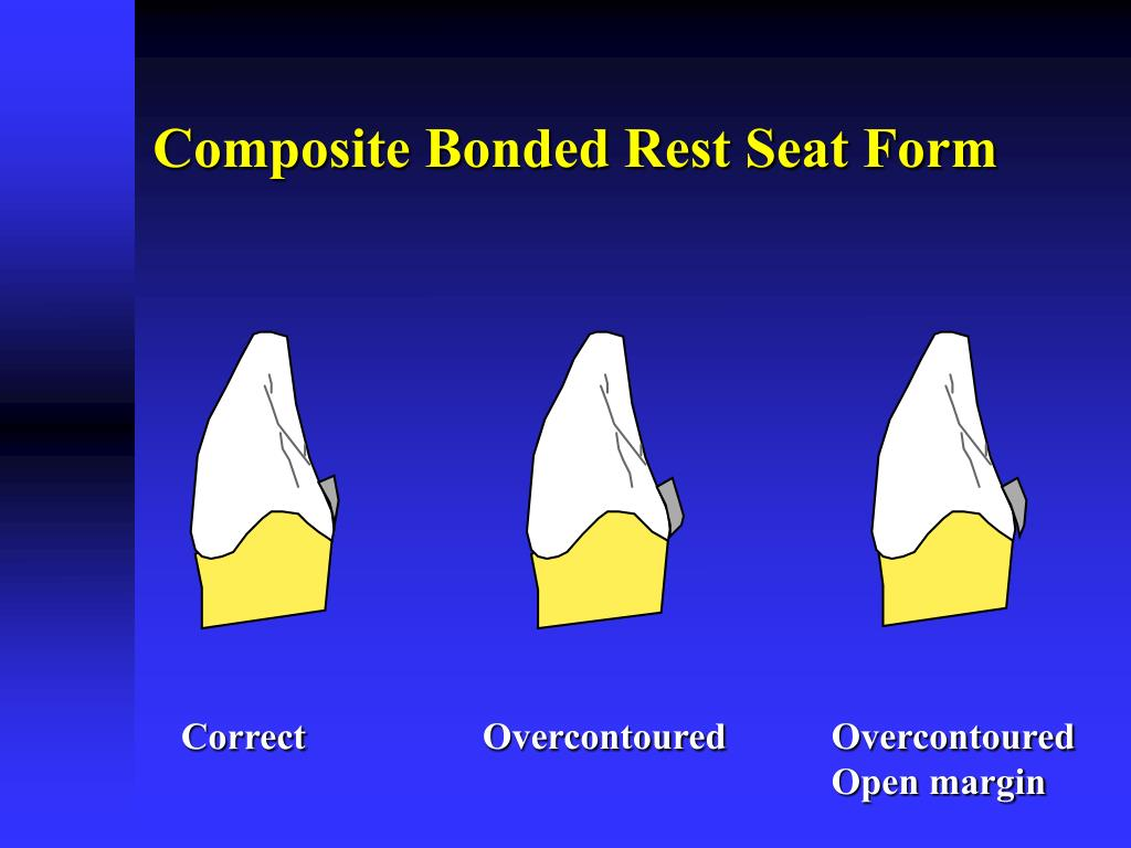 Composite Bonded Rest Seat Form