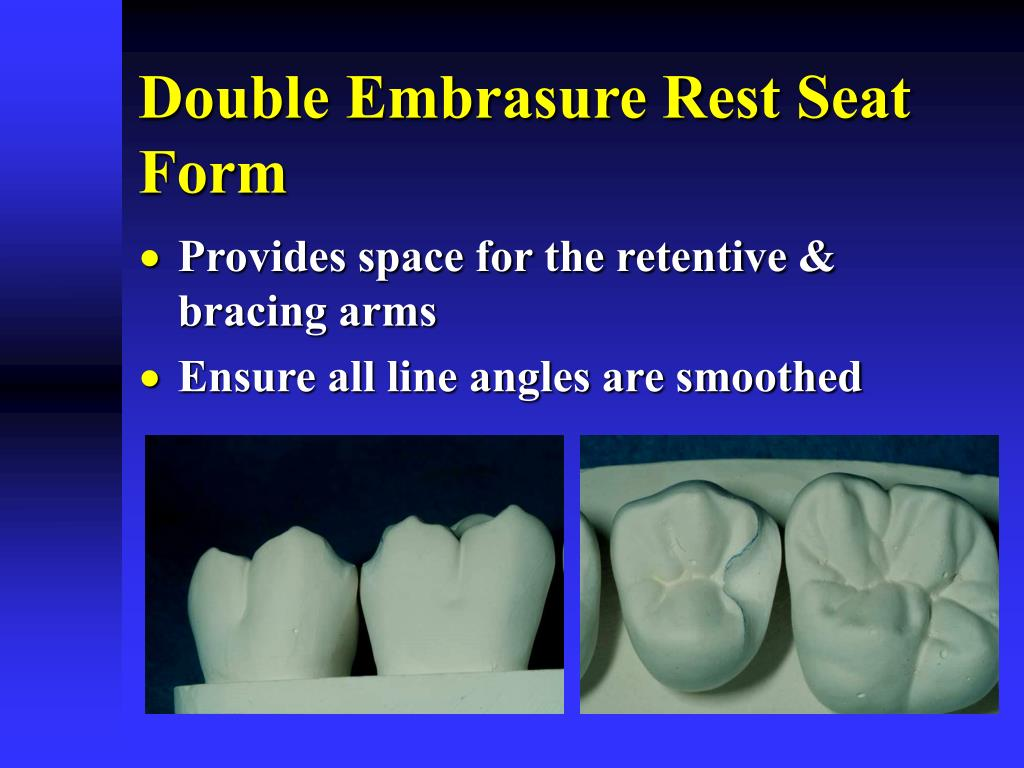 Double Embrasure Rest Seat Form