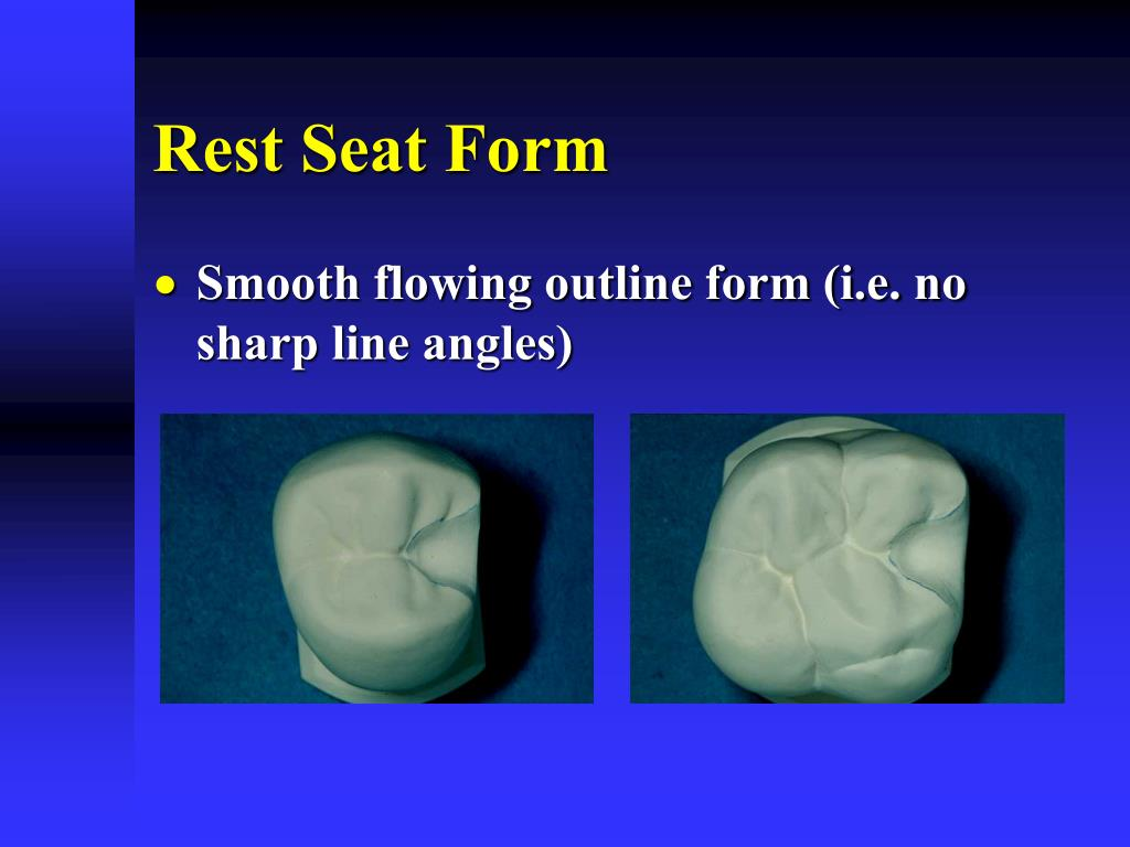 Rest Seat Form
