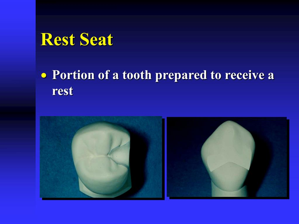 Rest Seat