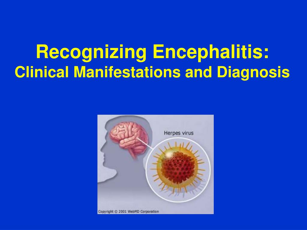 Recognizing Encephalitis:
