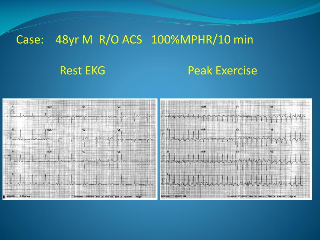 Case:    48yr M  R/O ACS   100%MPHR/10 min