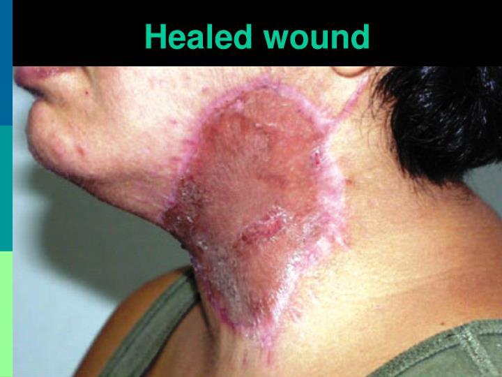 Healed wound