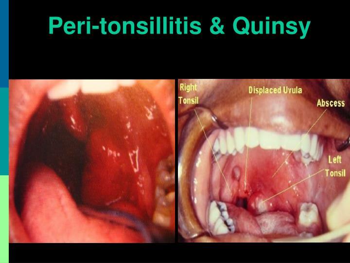 Peri-tonsillitis & Quinsy