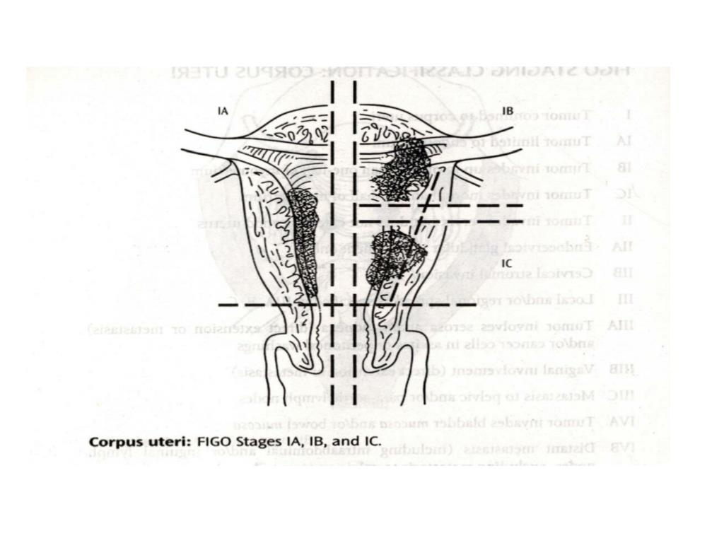 uterus corpus auto electrical wiring diagramppt endometrial carcinoma powerpoint presentation