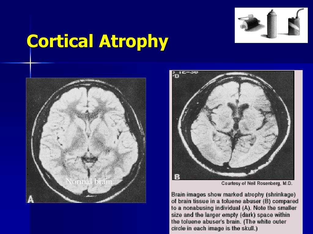 Cortical Atrophy