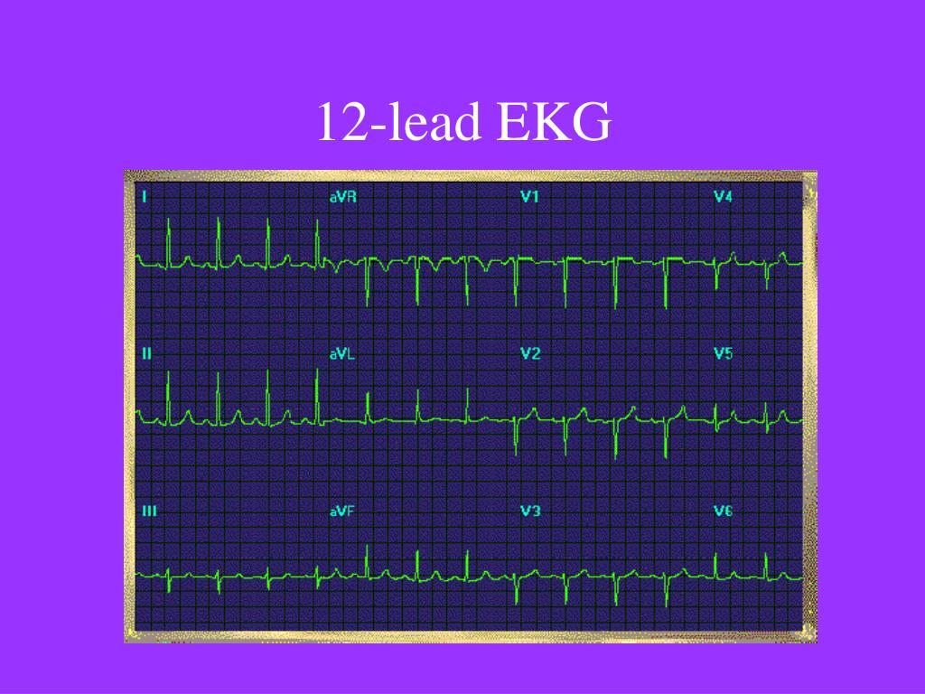 12-lead EKG