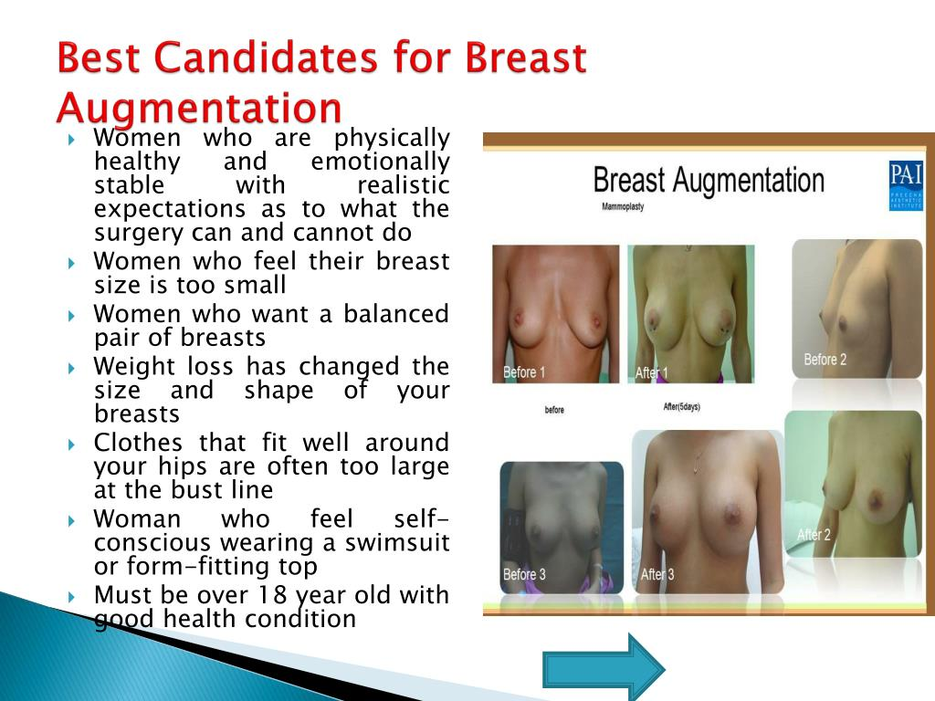 Best Candidates for Breast Augmentation