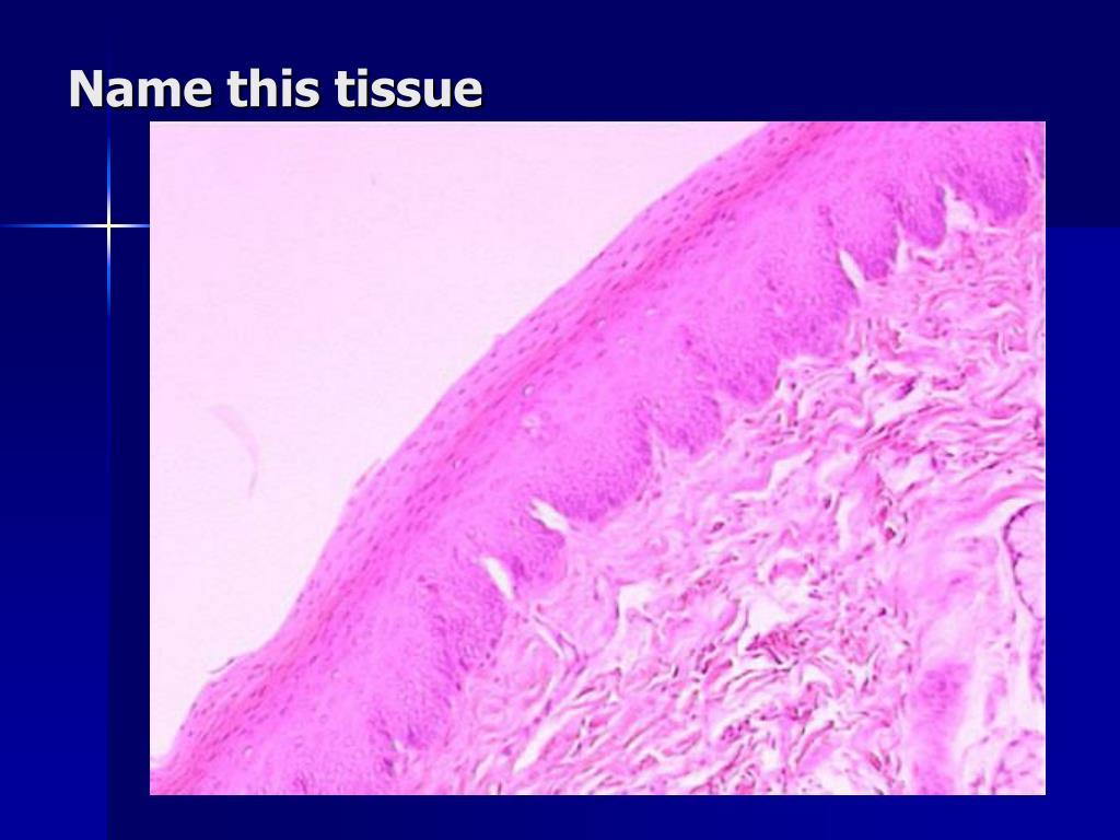 Name this tissue
