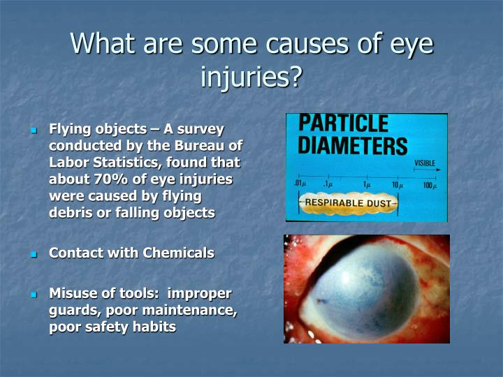 What are some causes of eye injuries?