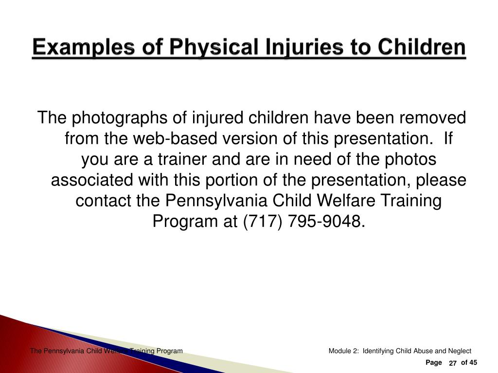 Examples of Physical Injuries to Children