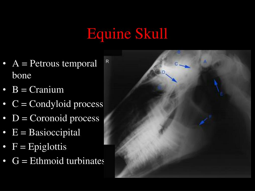 Normal Radiographic Anatomy Of The Equine Head further Views And Sutures Norma Lateralis Labeled Norton 1e General Anatomy Frank H  ter 56789 also Human Anatomy Head And Neck additionally Secao Lateral De Cabeca C12 3b Scientific p 32 236 also Orbit 2. on skull lateral view labeled