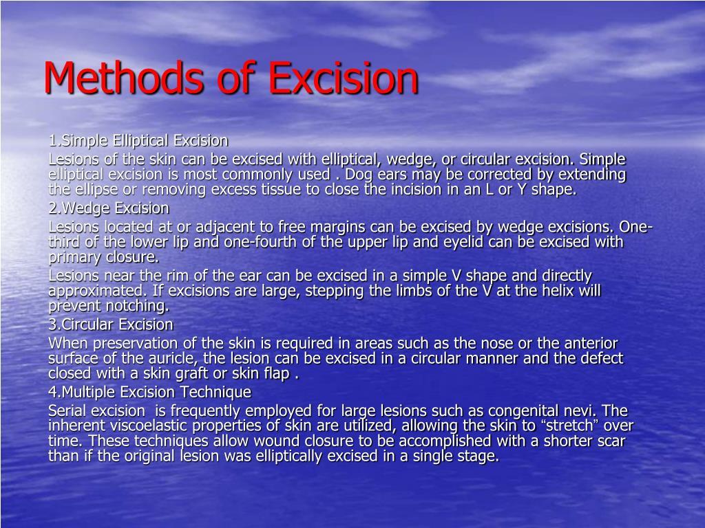 1.Simple Elliptical Excision