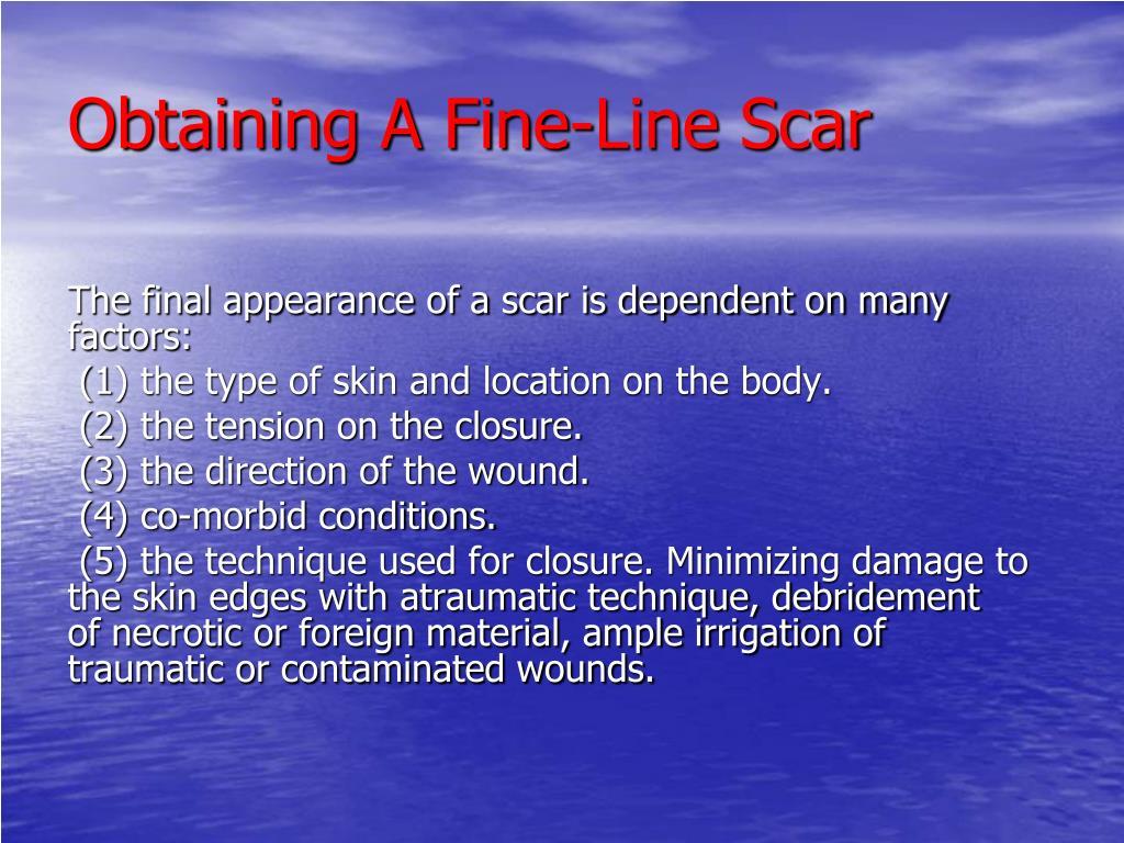 Obtaining A Fine-Line Scar