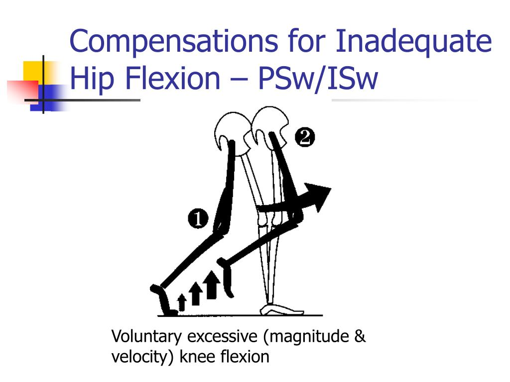 Compensations for Inadequate Hip Flexion – PSw/ISw