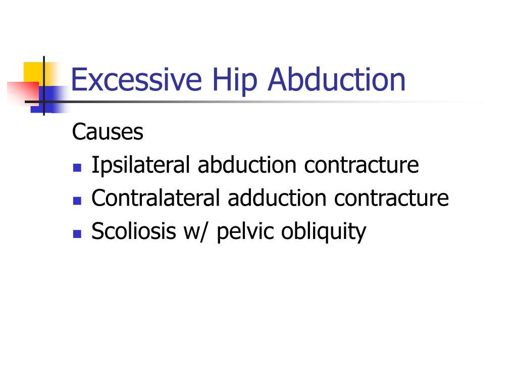 Excessive Hip Abduction