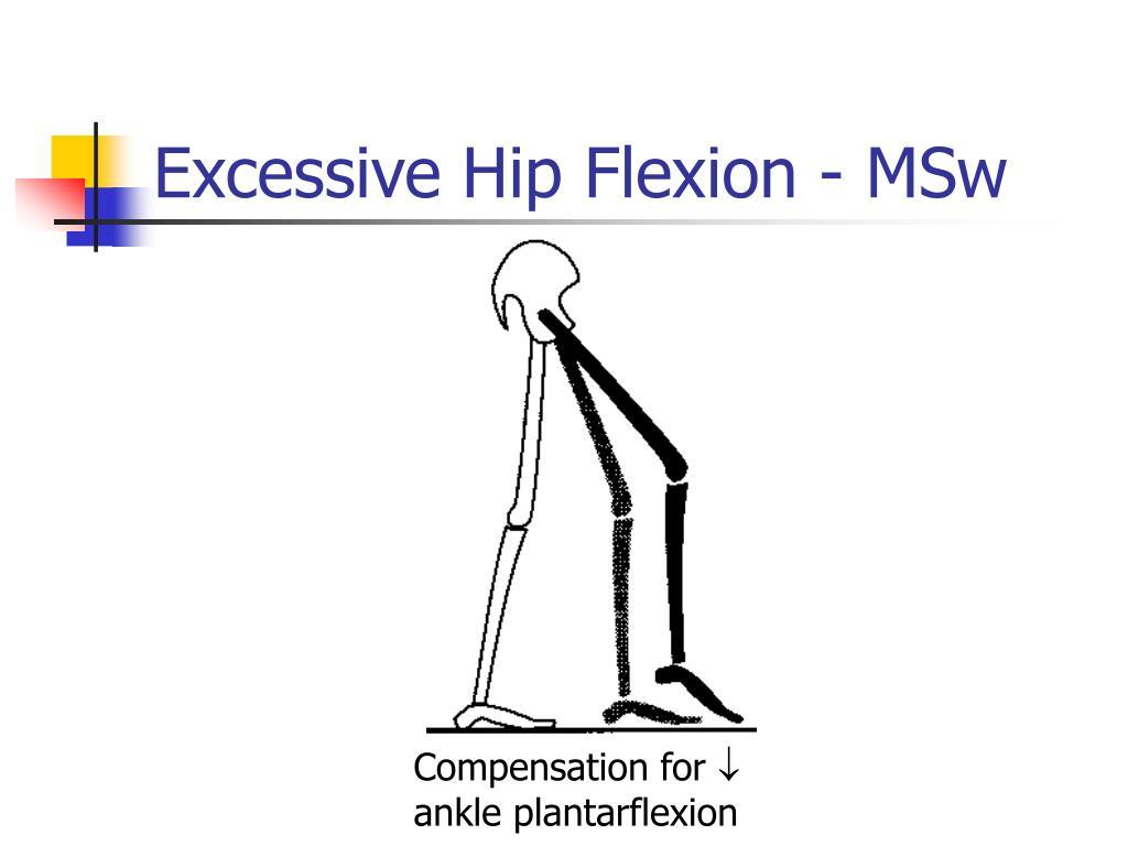 Excessive Hip Flexion - MSw