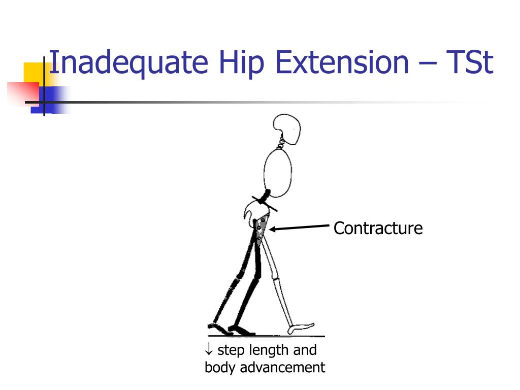Inadequate Hip Extension – TSt