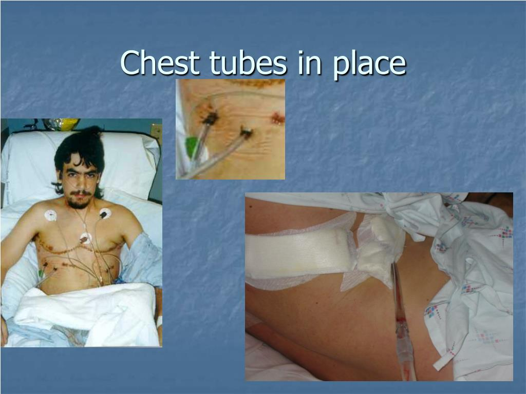 Chest tubes in place