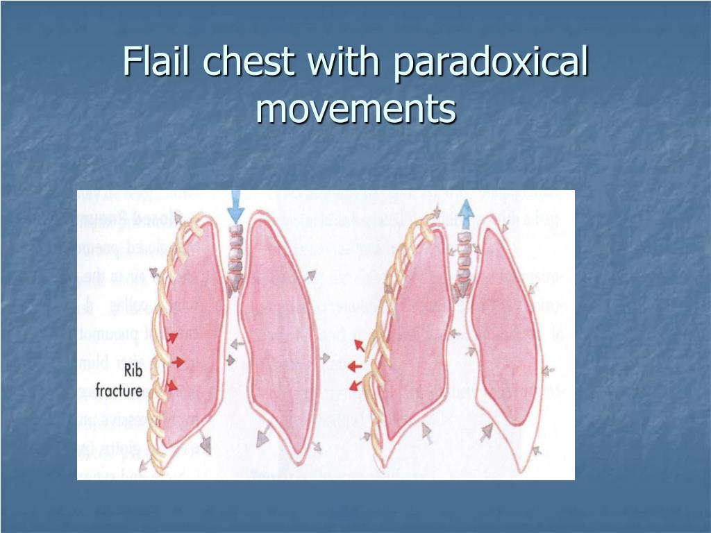 Flail chest with paradoxical movements