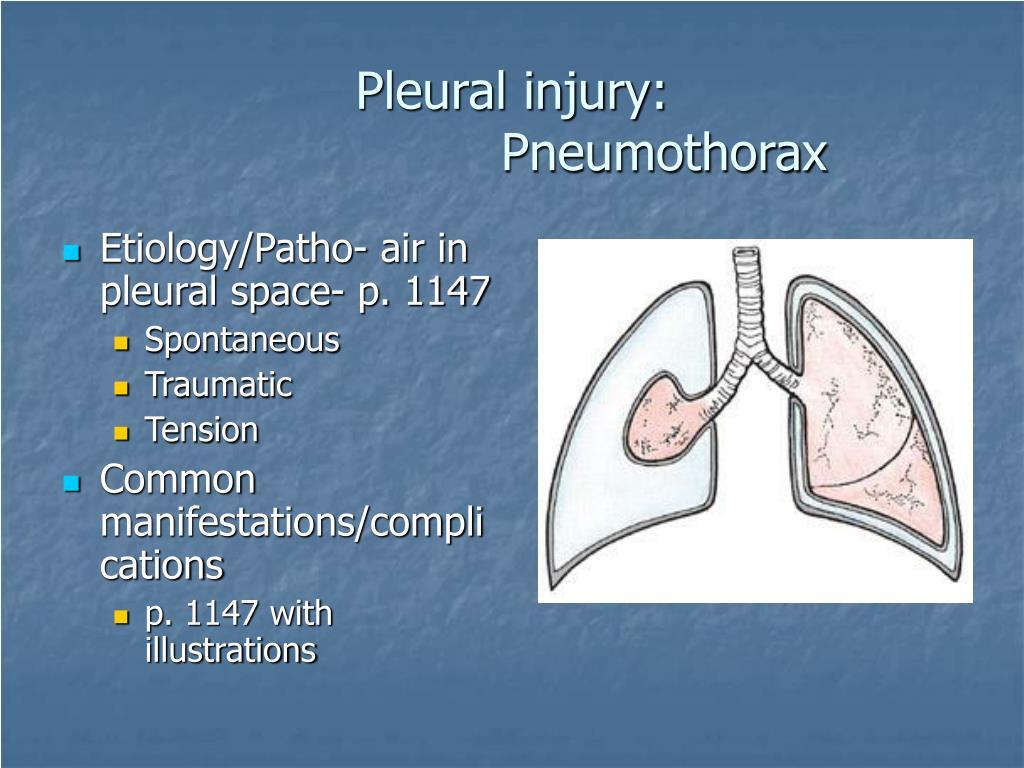 Pleural injury: